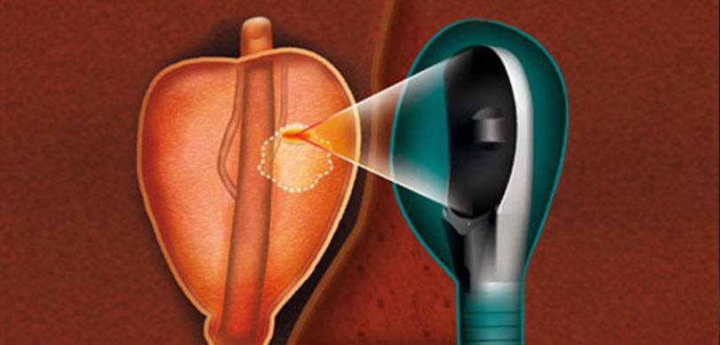 HIFU em Câncer de Próstata